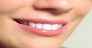 مواد طبيعية  لتبيض الاسنان